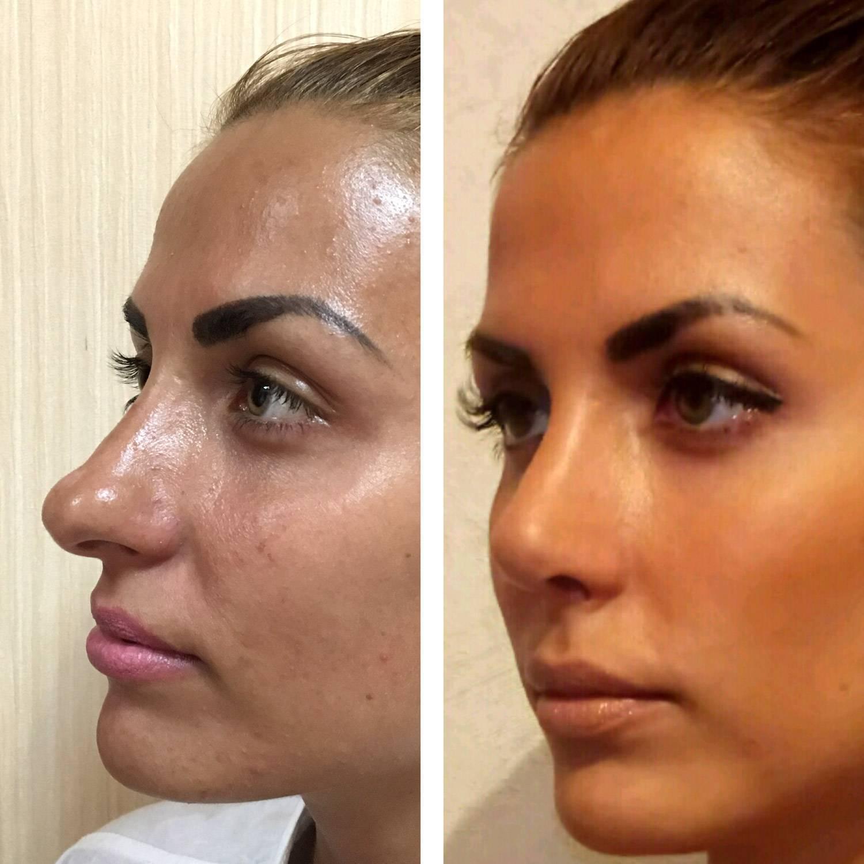 уменьшение носа без операции