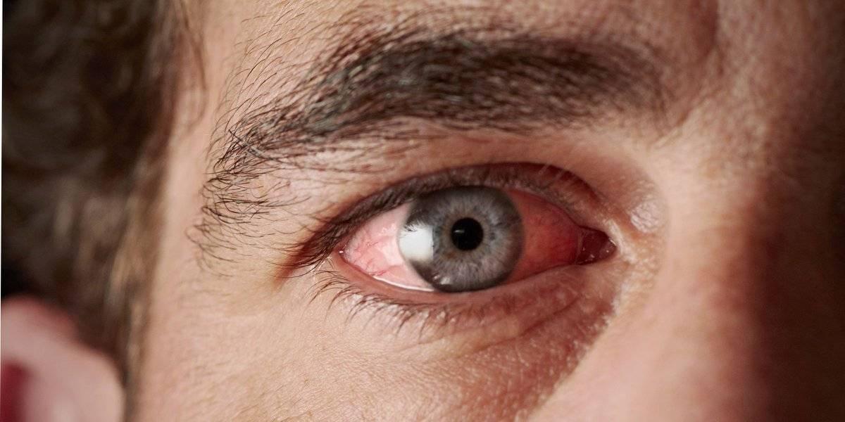 Почему болят глаза, виски и голова? почему болят глаза, когда ими двигаешь? почему болят и слезятся глаза? почему болят глаза после сна? почему у ребенка болят глаза?