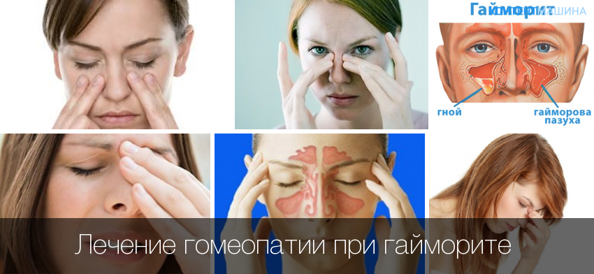 Гомеопатия при гайморите – помогает ли она
