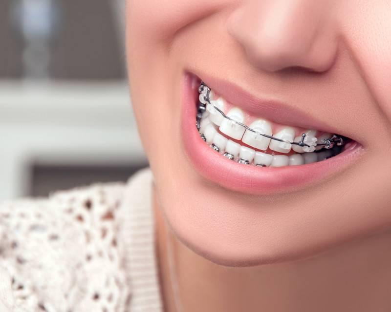 как ставят скобы на зубы
