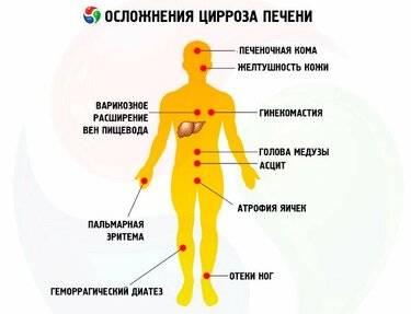 Отек легких при циррозе печени патогенез