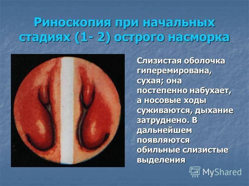 лечение субатрофического ринита