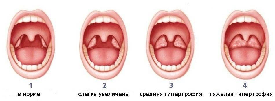 Тонзиллит у детей: симптомы и лечение (56 фото): как лечить острую и хроническую форму в горле в домашних условиях, профилактика