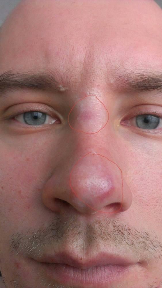 Сонник синяк на носу. к чему снится синяк на носу видеть во сне - сонник дома солнца