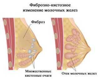 киста молочной железы причины появления