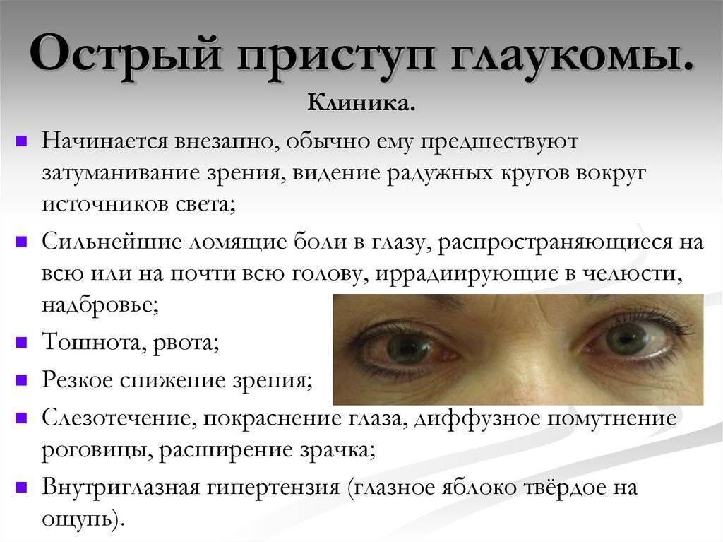 острый приступ глаукомы лечение