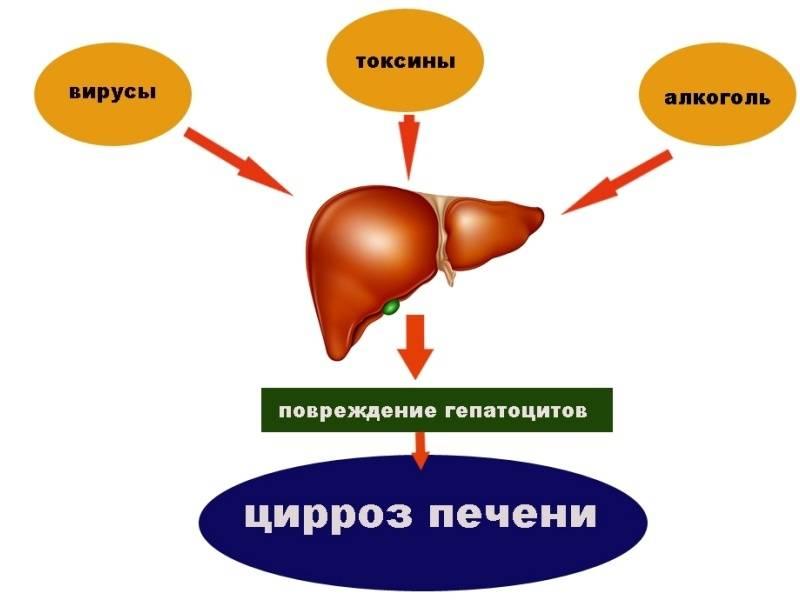 цирроз печени симптомы у мужчин последняя стадия