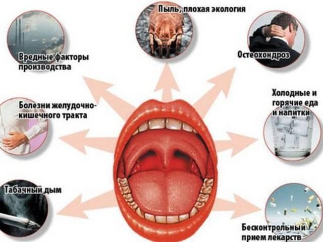 Хронический тонзиллит: компенсированный, декомпенсированный