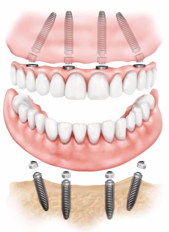 Обзор способов протезирования передних зубов: показания и преимущества