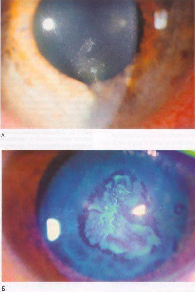 Что такое эрозия роговицы глаза: виды и лечение