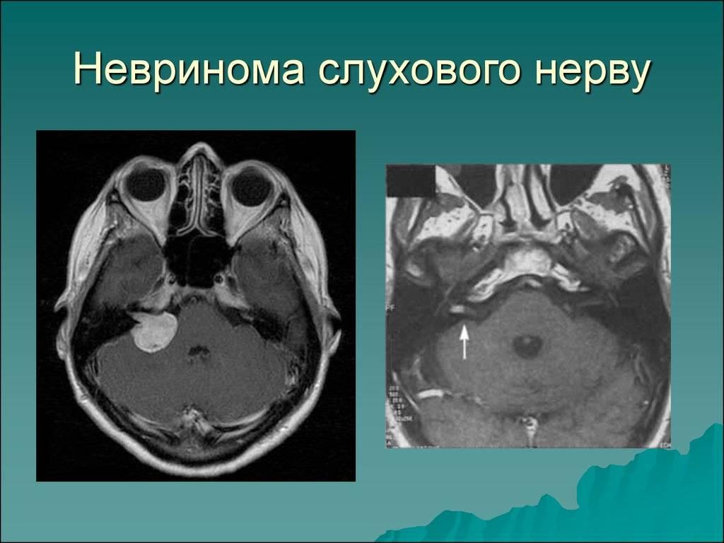 невриномы слухового нерва