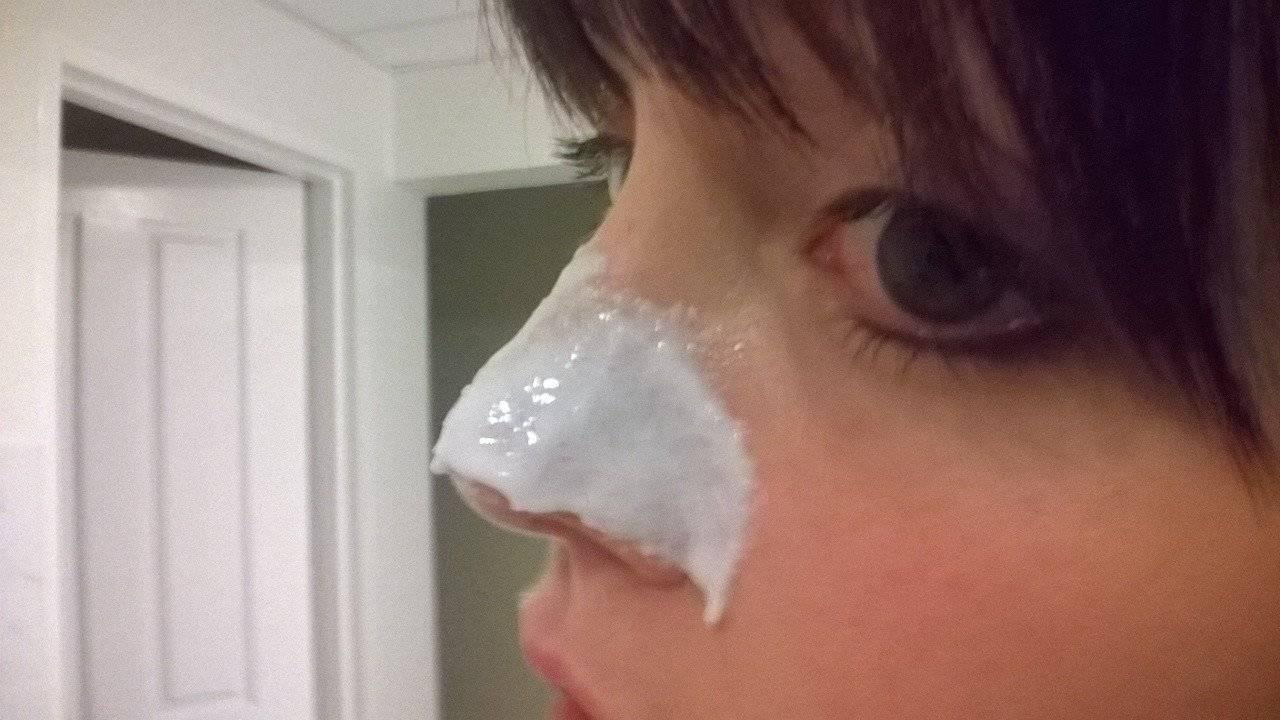 слива на носу