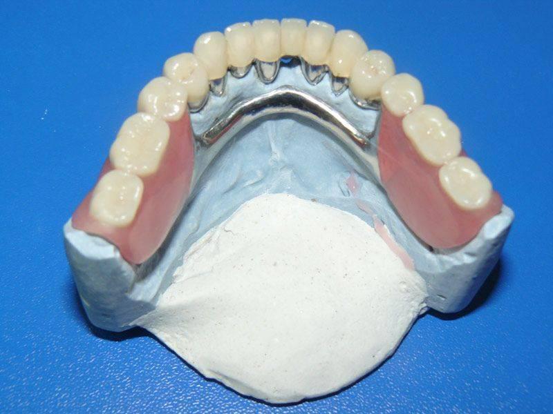 зубные протезы съемные бюгельные
