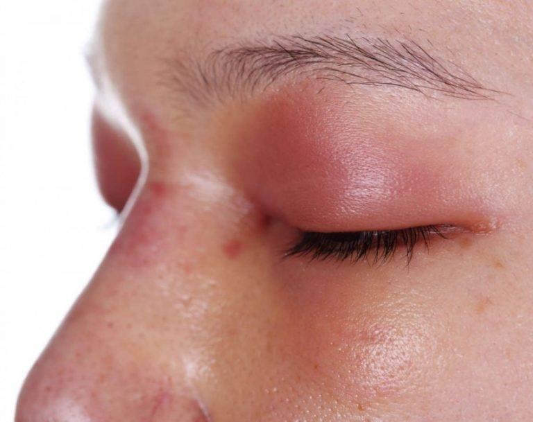 признаки стафилококка в носу