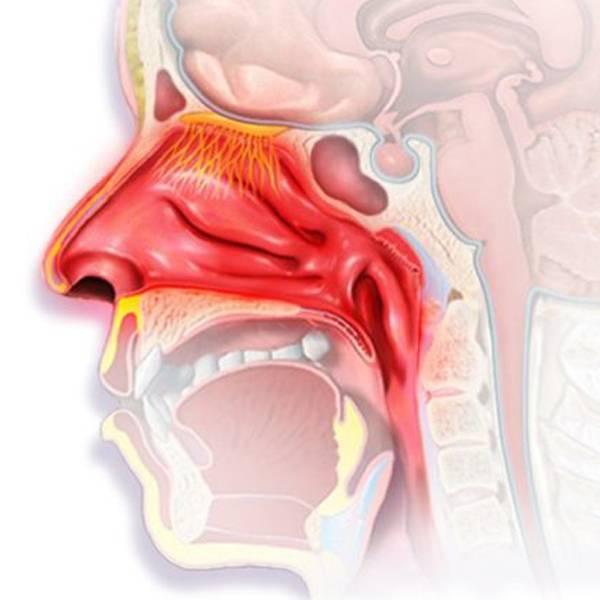 Субатрофический ринофарингит симптомы лечение
