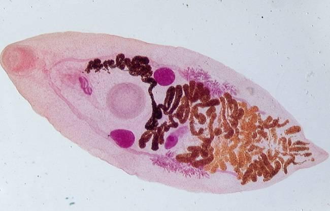 трематодозы человека