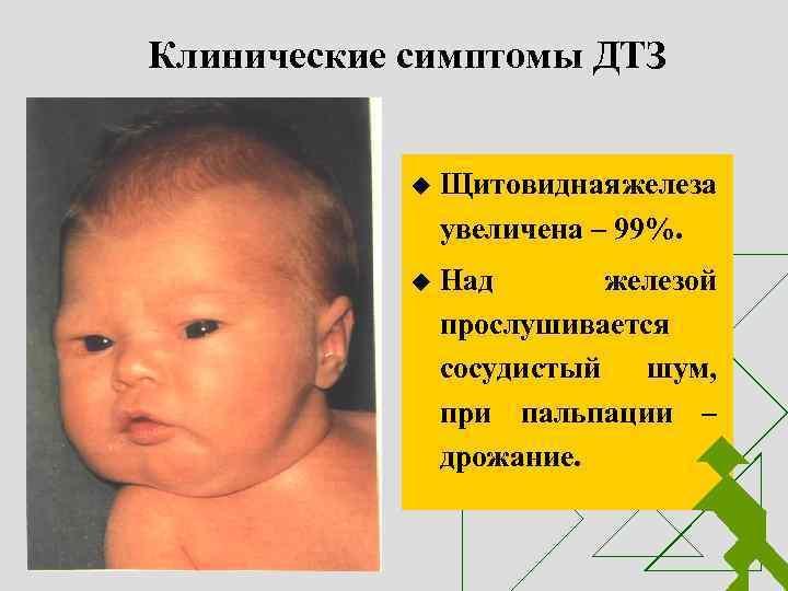 щитовидная железа у ребенка 10 лет