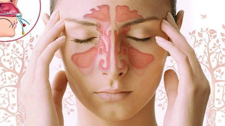 Аллергический отек слизистой носа