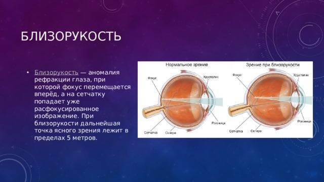 Диагностика и коррекция аномалий рефракции