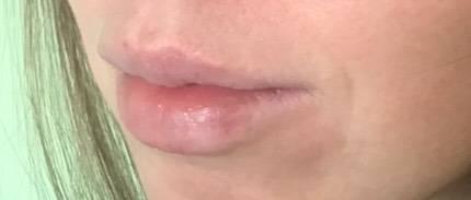 Последствия герпеса на губах