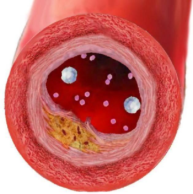 Холестериновые бляшки на веках: способы лечения заболевания