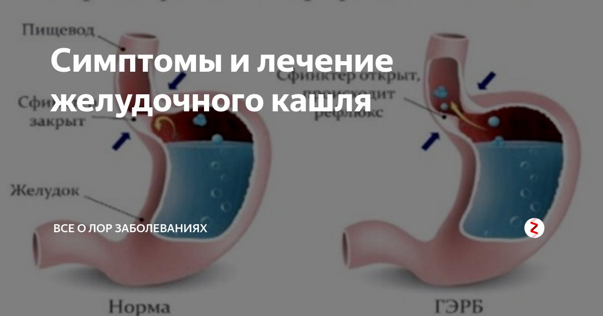 желудочный кашель симптомы