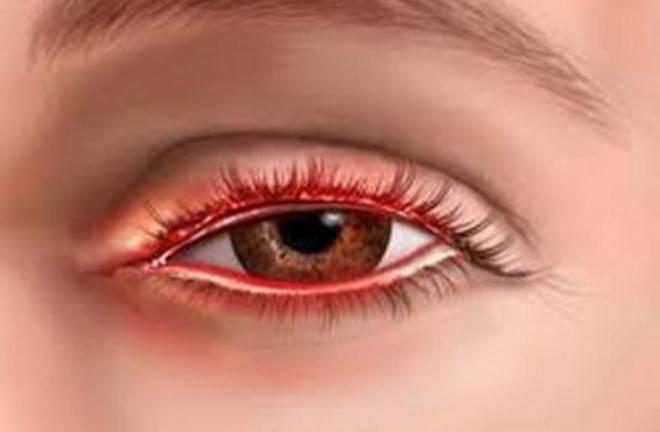Красные веки у взрослого человека: причины покраснений, лечение