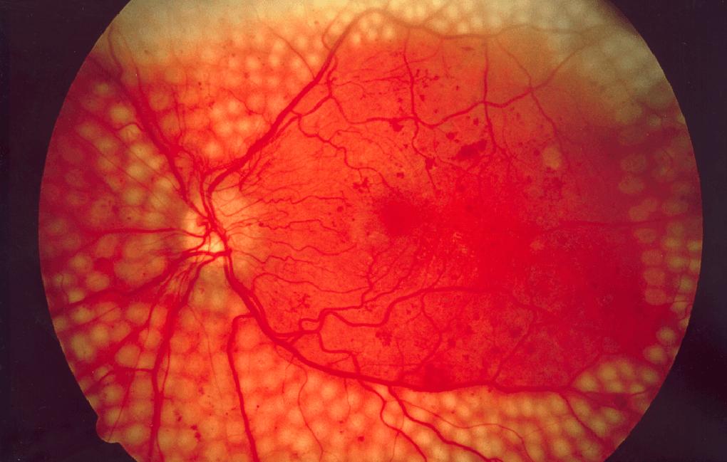 повреждение сетчатки глаза лечение