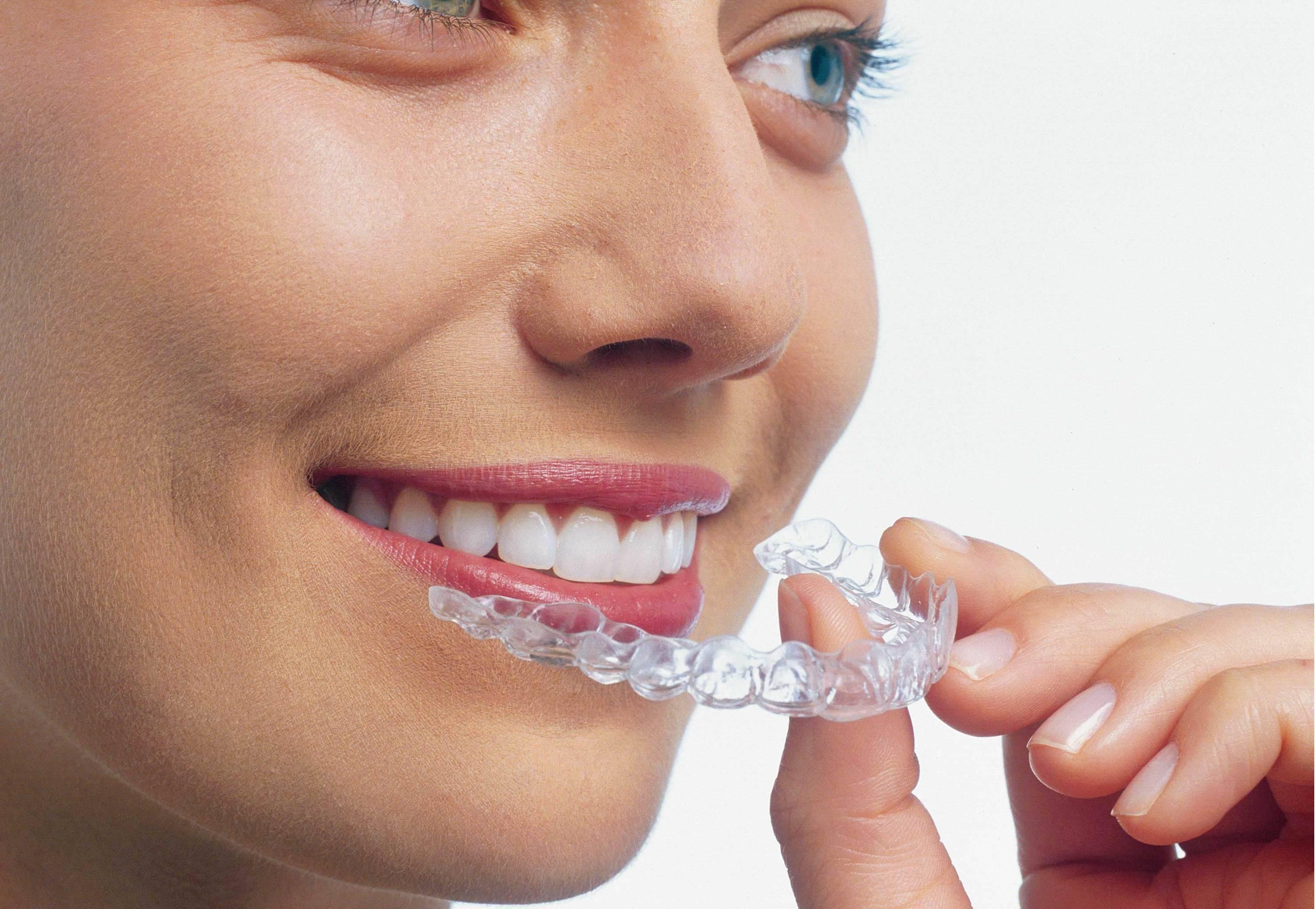 как быстро выпрямить зубы