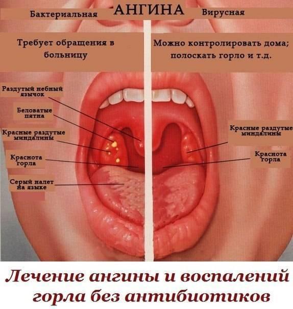 Чем лучше смазывать горло при ангине