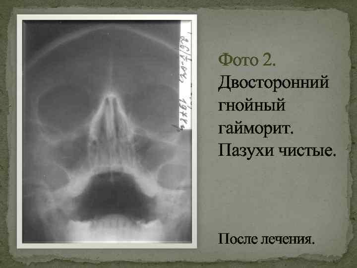 Острый гайморит: виды, причины возникновения, симптомы, диагностика, лечение и профилактика с фото