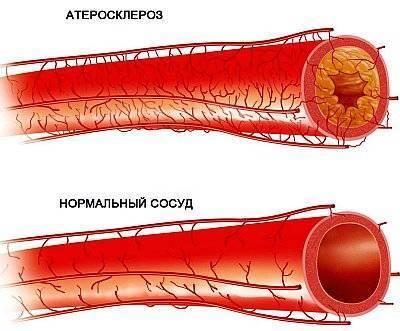 Атеросклероз брюшной аорты какой врач лечит