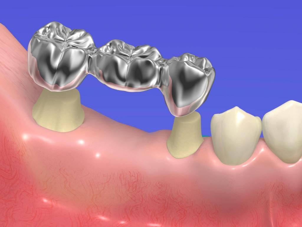 Адгезивное протезирование зубов в стоматологии «президент»