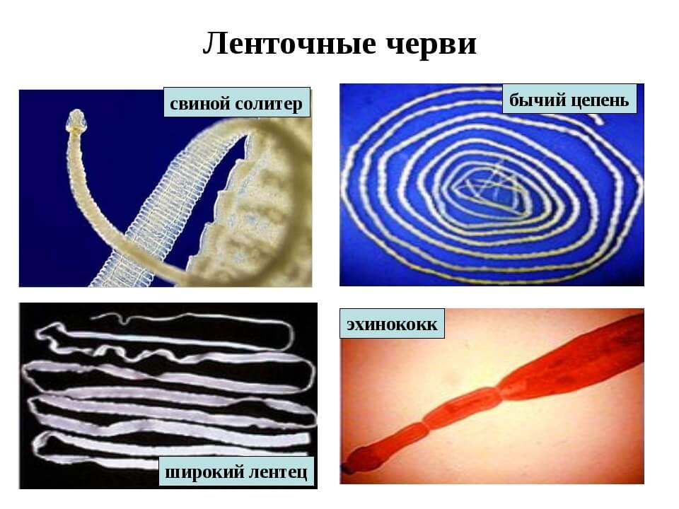 Как избавиться от ленточных глистов у человека? способы лечения