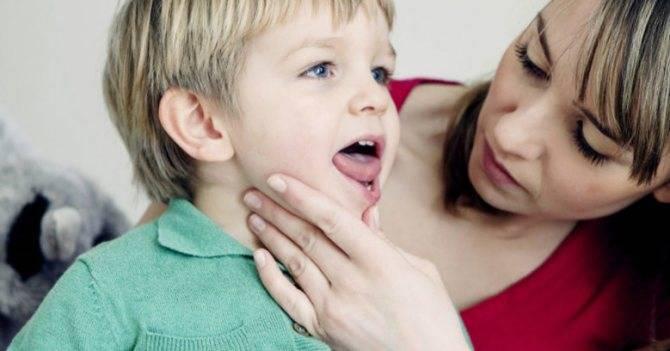 Лечение горла у детей препаратами и народными средствами
