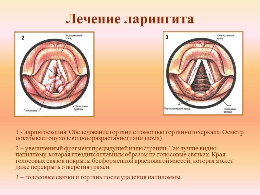 острый ларингит симптомы