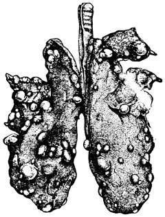 Эхинококкоз легких