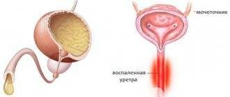 Лечение уретрита и цистита у мужчин