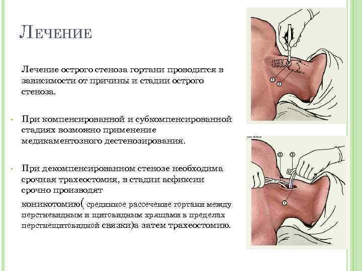 Стеноз гортани у ребенка: лечение. что это? первая помощь