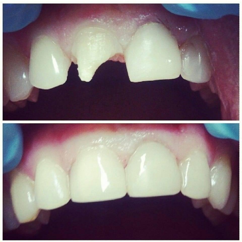 Художественная реставрация передних зубов - виды, плюсы, минусы и стоимость процедуры