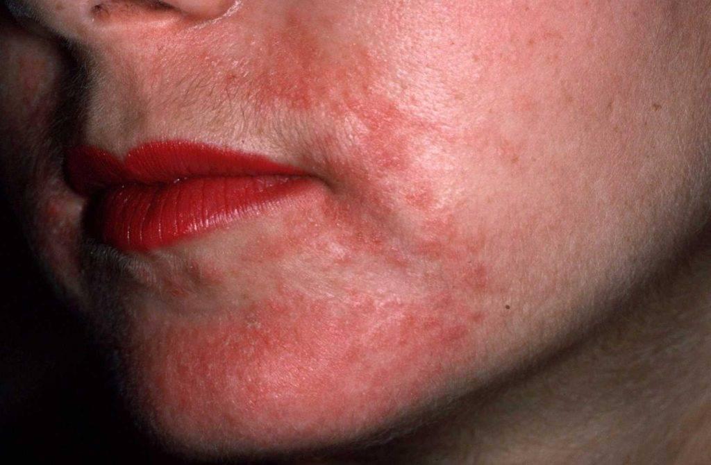 дерматит кожи лица