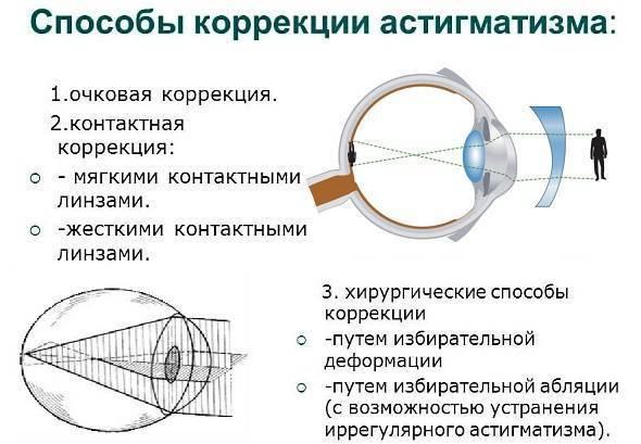 Заболевание органов зрения – миопический астигматизм