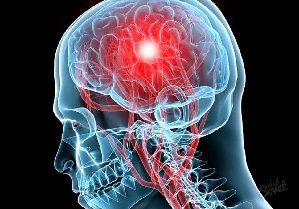 Энцефалопатия головного мозга – что это такое? резидуальная, алкогольная, токсическая, перинатальная, посттравматическая энцефалопатия