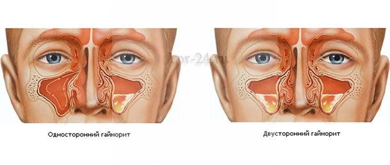 Причины, симптомы и лечение пристеночного гайморита