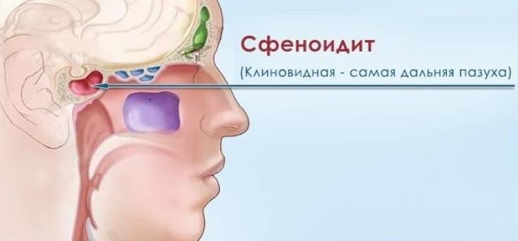 как лечить сфеноидит