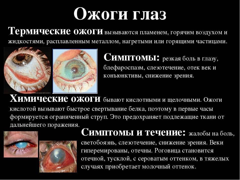ожог века глаза лечение