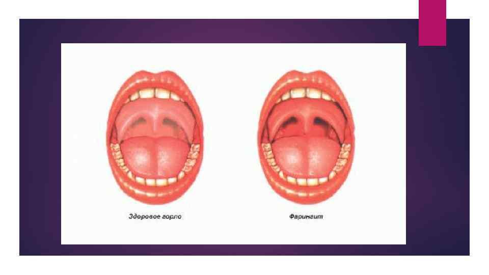 Воспаление горла: лечение и профилактика — симптомы