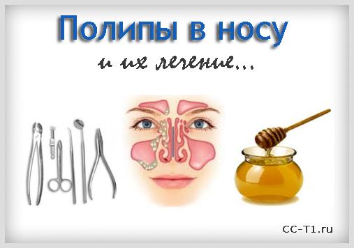 лечение полипов в носу чистотелом