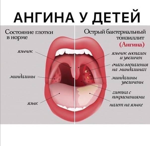 Бактериальная ангина у детей
