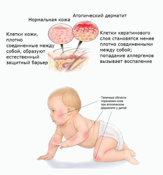 Дерматит у детей